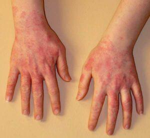 Холодовая аллергия: что нужно знать