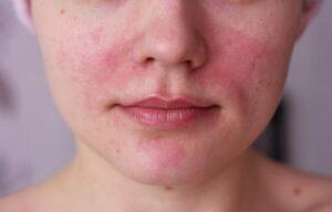 Раздражение на лице: как справиться?
