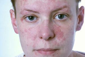 Как проявляется аллергия на табачный дым у детей: вред пассивного курения